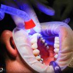 Zła sposób żywienia się to większe braki w jamie ustnej a również ich utratę